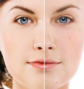 Calgary Laser Acne Removal | Facial Esthetics One