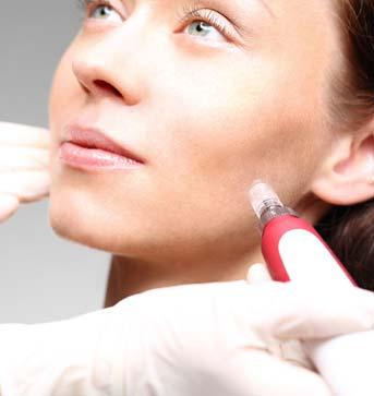 skin-smoothing-service