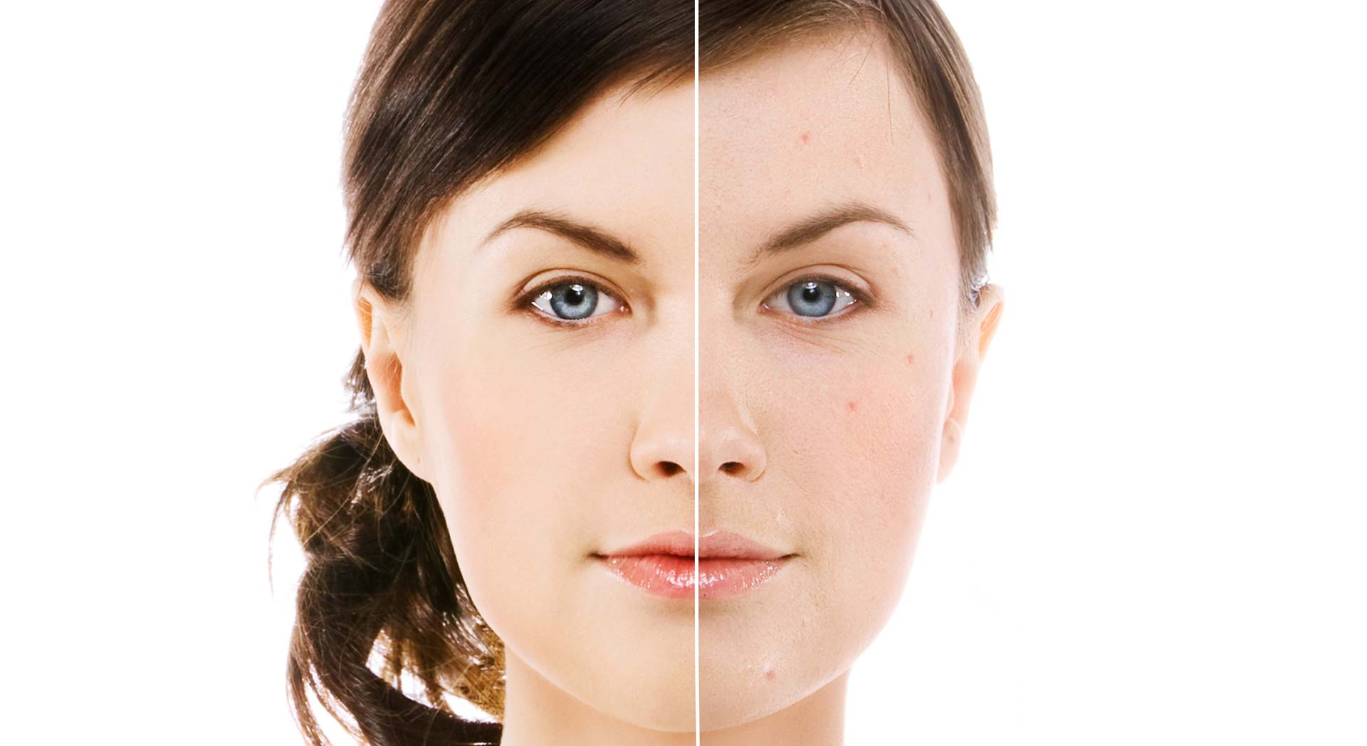 Calgary Laser Acne Removal | Facial Esthetics One