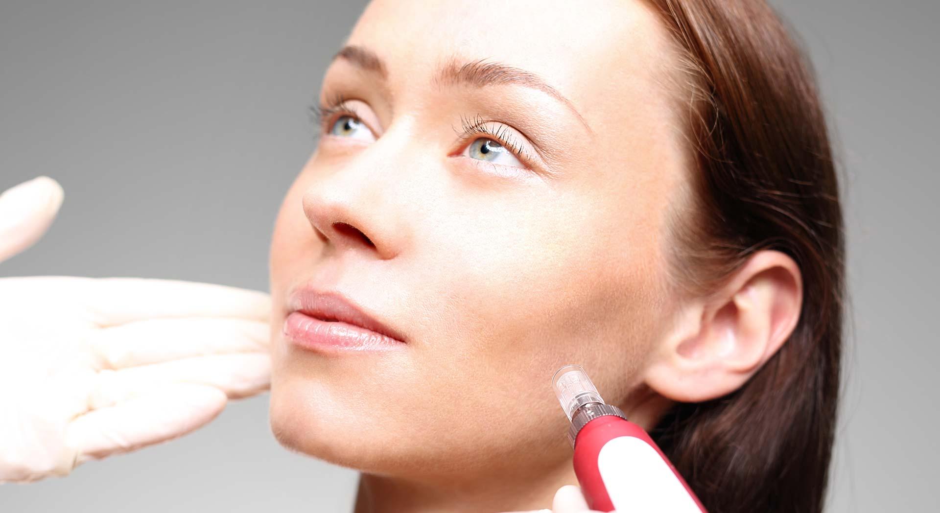 Calgary Skin Smoothing | Facial Esthetics One